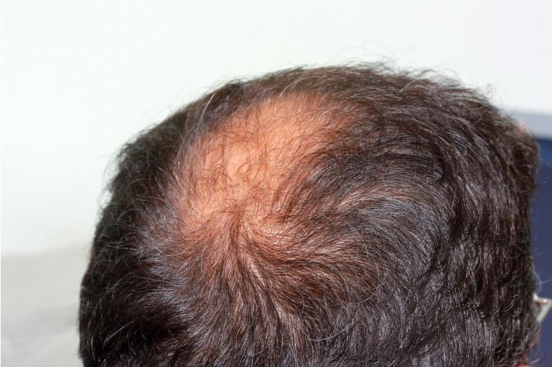 Jaké faktory mohou vypadávání vlasů ovlivnit?